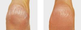Ferse vor und nach der Behandlung mit Hansaplast Repair & Care